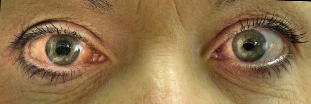 10 симптомов, которые говорят о проблемах с глазами