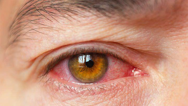 Как бороться с «песком» в глазах